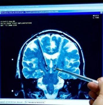 APERTURA-HASHTAG-SICILIA-NEWS-NOTIZIE-GIORNALE-ONLINE-OGGI-NOTIZIA-DEL-GIORNO-REDAZIONE-CERVELLO-NEUROSCIENZA-NEUROSCIENZE-NEUROSCIENZIATI-LASTRA-ELETTROENCEFALOGRAMMA